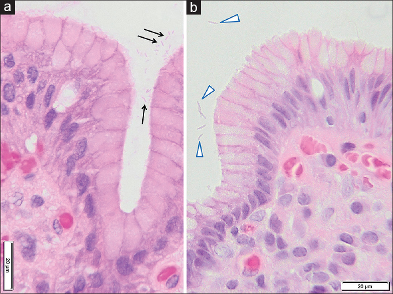Figure 2: Gastric mucosa showing the most common rod-shaped morphology of <i>Helicobacter pylori</i> (a, arrows) and the spiral-shaped <i>Helicobacter heilmannii</i> (b, arrowheads). Both photomicrographs are from H and E, ×100 oil magnificationFigure 1: Gastric mucosa showing the least common coccoid-shaped morphology of <i>Helicobacter pylori</i> (arrows). H and E, ×100 oil magnification