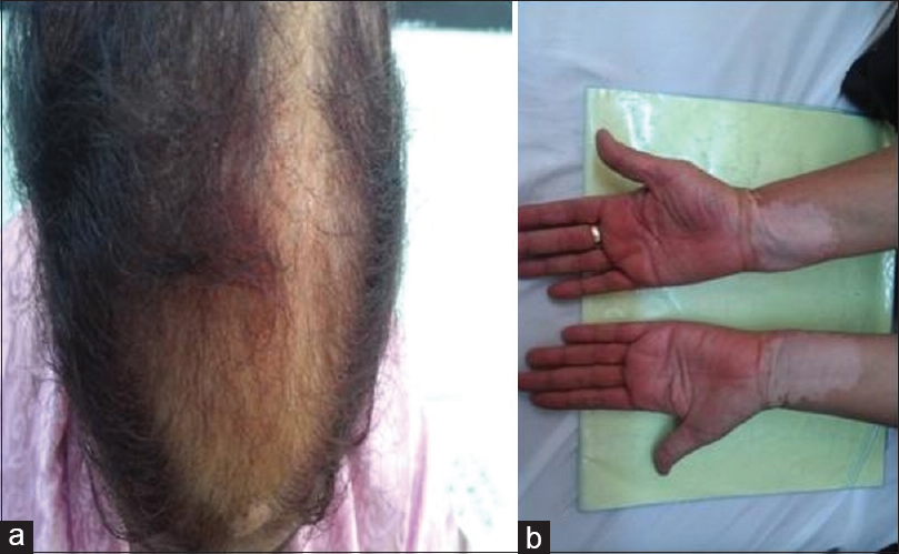 Figure 1: Clinical features suggestive of associated autoimmune diseases. (a) Thinning of scalp hair, (b) vitiligo patches